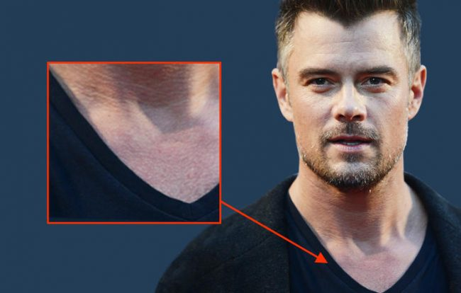 duhamel-body-hair
